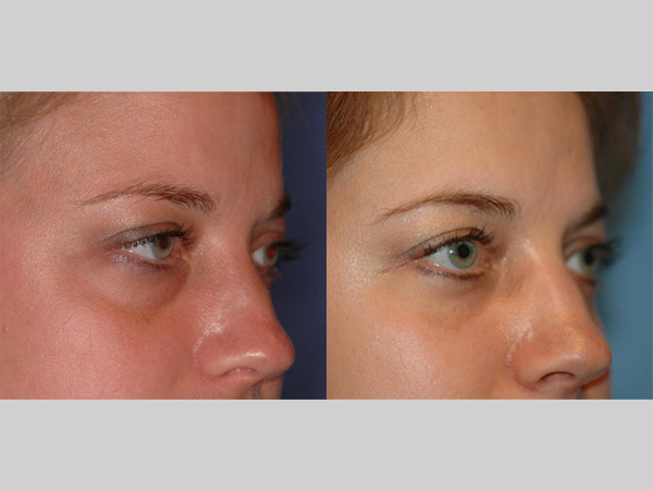 Oculoplastic Surgeon Mark Lucarelli Before And After Photos Uw