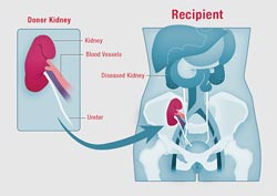 The recipient surgery in a living kidney donation