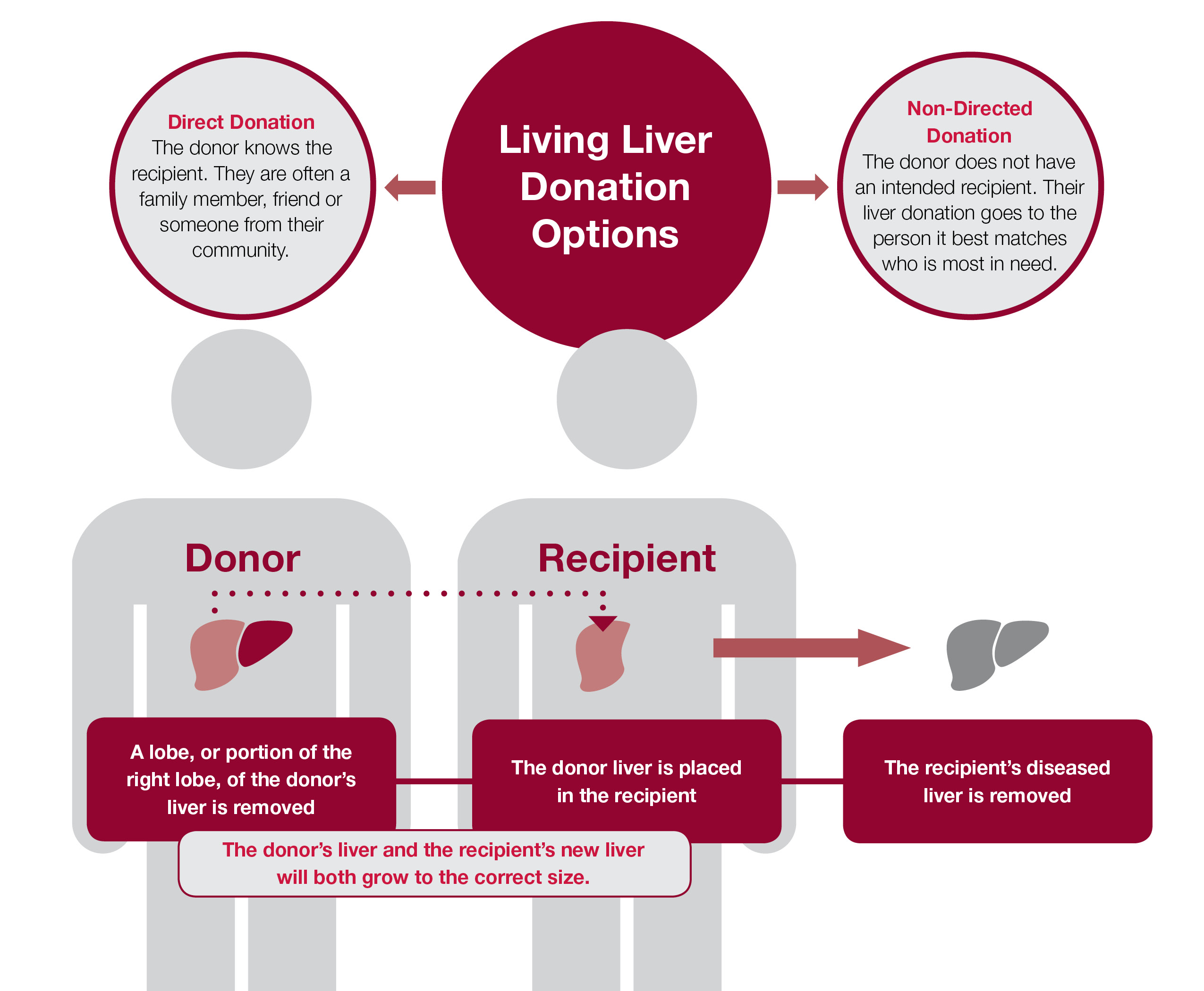 Living Liver Donation Options